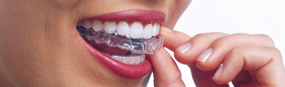 invisalign-ortodoncia-invisible-Madrid-Pozuelo-Aravaca