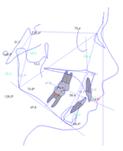 radiografa ortodoncia 03