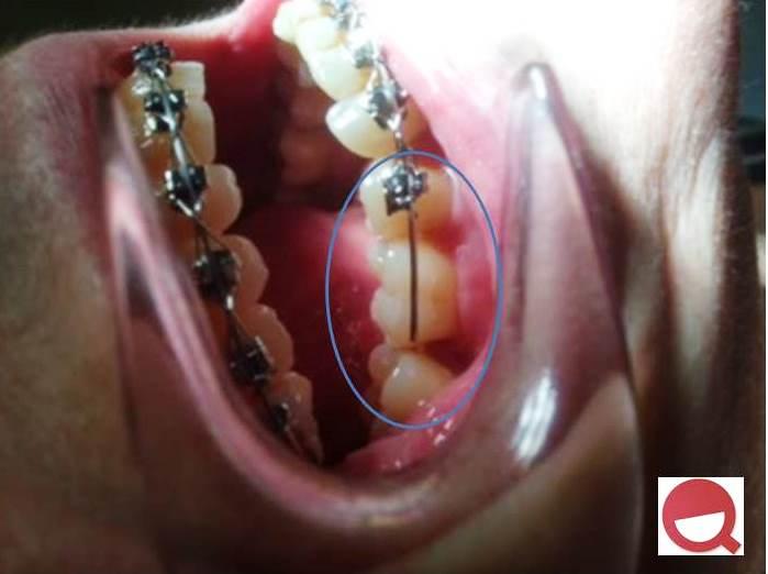 urgencias-ortodoncia-pozuelo-aravaca
