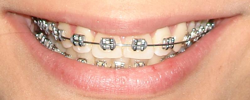 ortodoncia-e-inflamación-de-encias