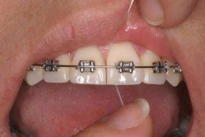 ortodoncia-encías-inflamadas
