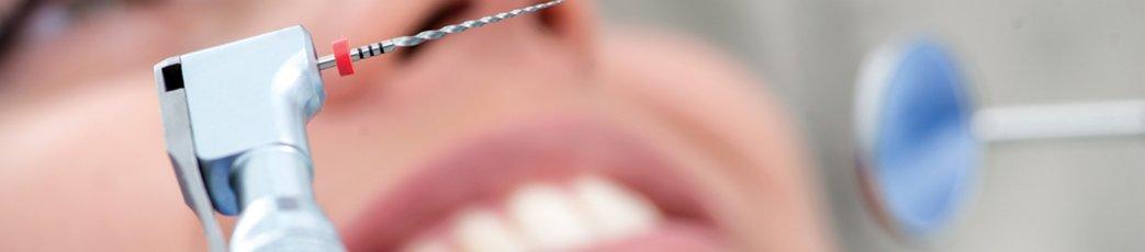 Endodoncia-Pozuelo-Aravaca-Qboca