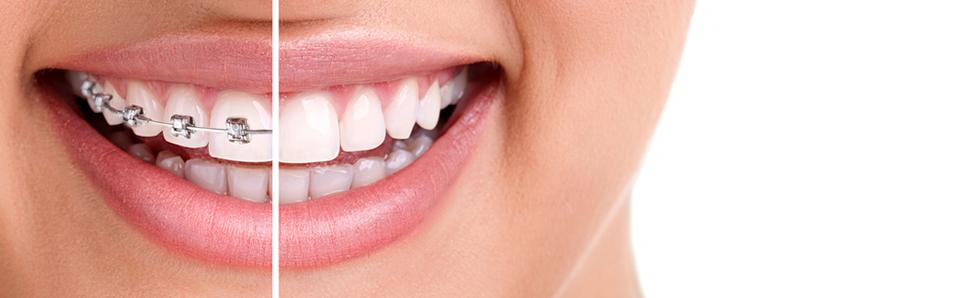 Estudio-de-ortodoncia-gratuito