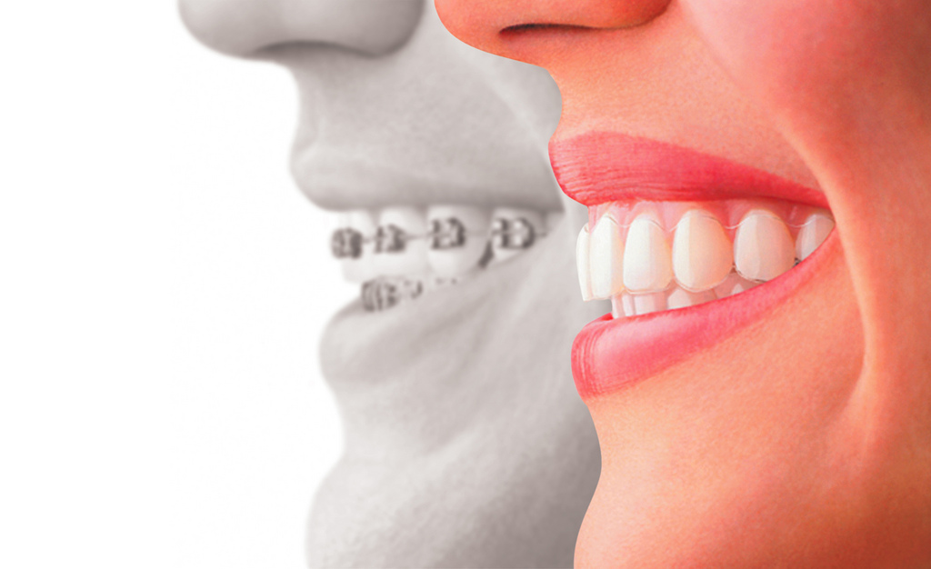 tipos-de-ortodoncia-en-adultos
