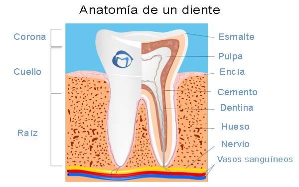 partes de un bracket dental