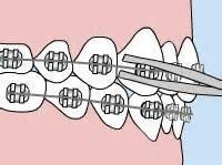 Urgencias de ortodoncia
