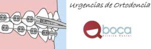 Urgencias-ortodoncia-Pozuelo-y-Aravaca-casos-frecuentes