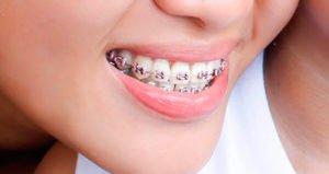 ortodoncia-y-bruxismo